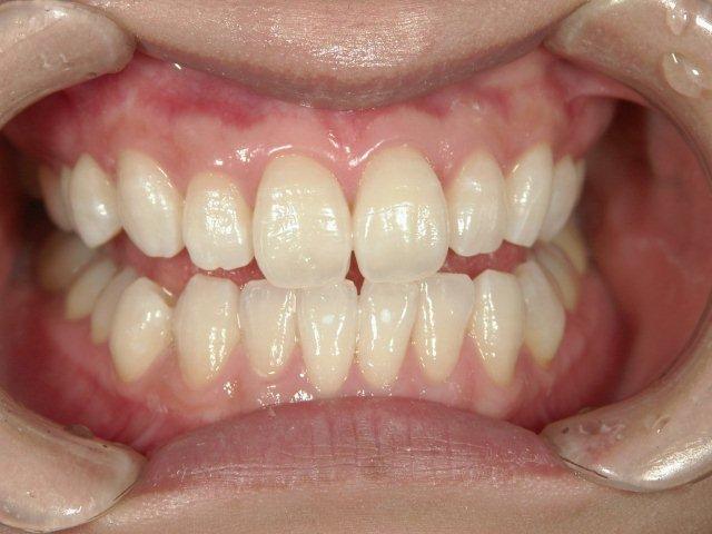 ホワイトニング後TAKAデンタルクリニック米子市歯科医院