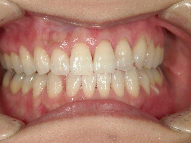ホワイトニング後2TAKAデンタルクリニック米子市歯科医院