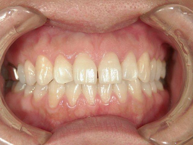 米子市TAKAデンタルクリニック歯科米子市ホワイトニング