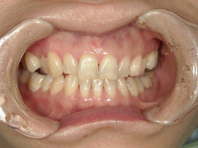 長尾前TAKAデンタルクリニック米子市歯医者タカデンタルクリニック
